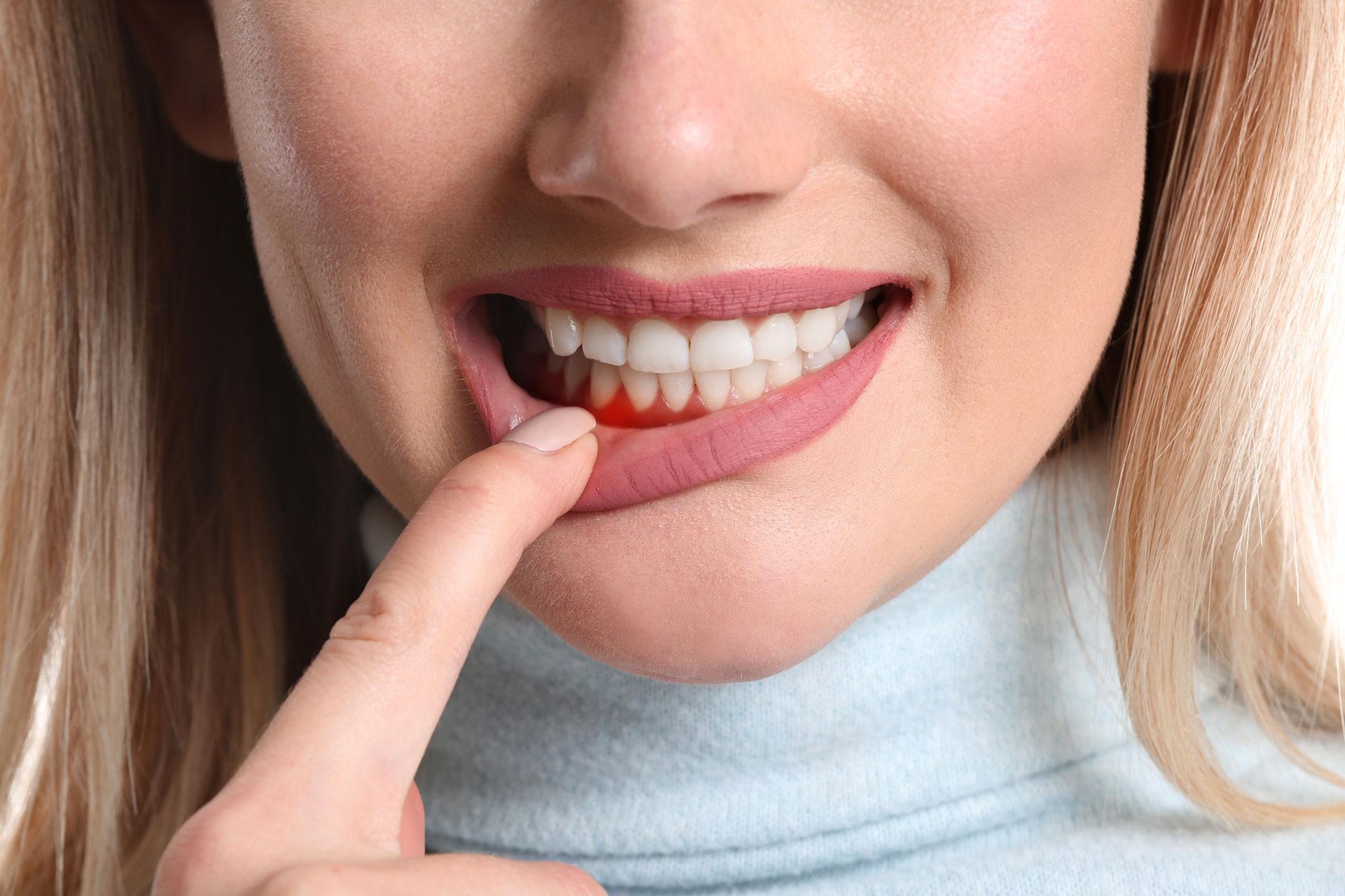 gum disease prevention Milwaukee